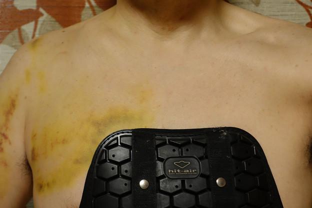 胸部プロテクタの効果?