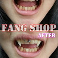 Photos: FANG SHOP 付け牙 A-0279-?(左右側切歯審美Type)